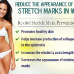 Revitol Stretch Mark Cream Removal Review: Does The Product Remove Stretch Marks As Promised?