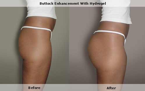 buttock steroid injection site
